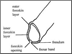 foreskin-retraction-1